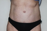 Photo - Tummy Tuck (old) 5 B.JPG