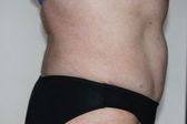Photo - Tummy Tuck (old) 5 D.JPG