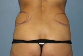 Photo - Tummy Tuck (old) 6 E.JPG