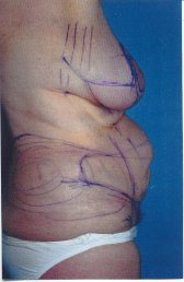 Photo - Tummy Tuck (old) 7 A.JPG