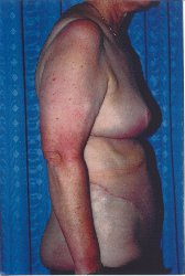 Photo - Tummy Tuck (old) 7 B.JPG