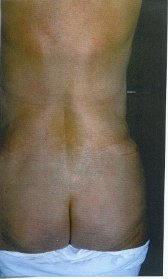 Photo - Tummy Tuck (old) 7 D.JPG