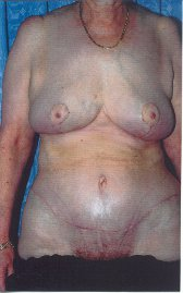 Photo - Tummy Tuck (old) 7 F.JPG