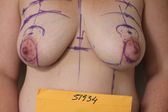 Photo - Tummy Tuck (old) 8 A.JPG