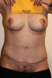 Photo - Tummy Tuck (old) 9 A.JPG