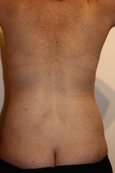 Photo - Tummy Tuck (old) 9 B.JPG