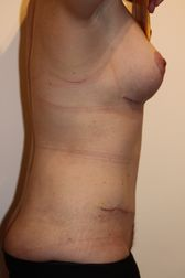 Photo - Tummy Tuck (old) 9 C.JPG