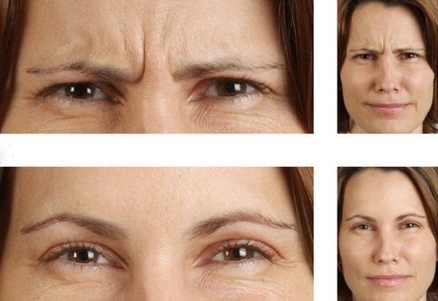 Photo - Wrinkle Eliminating Injections 1 - SAMPLE ONLY