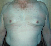 Photo - old - detailed liposuction 14.jpg