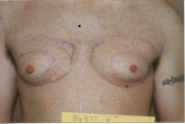Photo - old - detailed liposuction 15.jpg