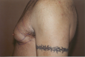 Photo - old - detailed liposuction 17.jpg