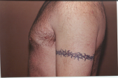 Photo - old - detailed liposuction 18.jpg