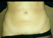 Photo - old - detailed liposuction 20.jpg