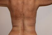 Photo - old - detailed liposuction 36.jpg