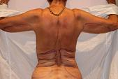 Photo - old - detailed liposuction 37.jpg