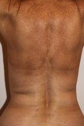 Photo - old - detailed liposuction 38.jpg