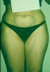 Photo - old - detailed liposuction 39.jpg