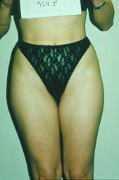 Photo - old - detailed liposuction 40.jpg