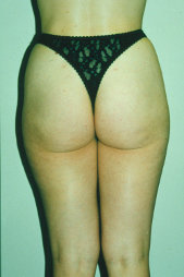 Photo - old - detailed liposuction 42.jpg