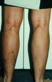 Photo - old - detailed liposuction 45.jpg