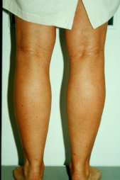 Photo - old - detailed liposuction 46.jpg