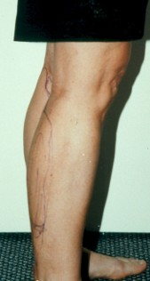 Photo - old - detailed liposuction 47.jpg
