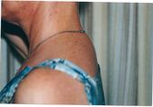 Photo - old - detailed liposuction 9.jpg